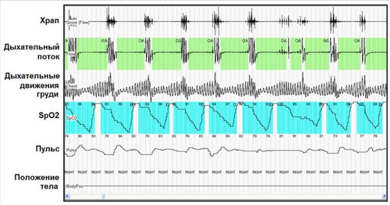 Кардиореспираторное мониторирование дает возможность выявить эпизоды апноэ и нарушений ритма