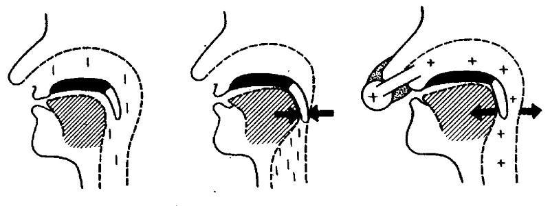 Схема работы СИПАП-терапии