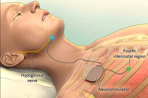 Стимуляция подъязычного нерва